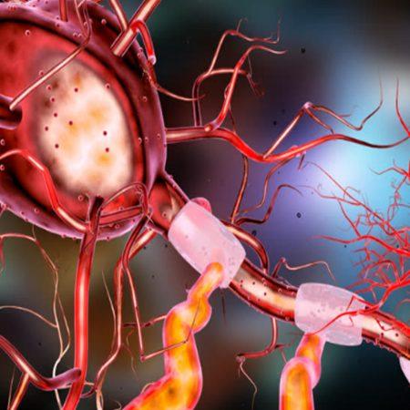 ACTIVIDAD ENFERMEDADES NEUROLÓGICAS