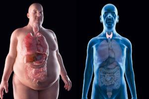 cuales-son-los-sintomas-del-hipertiroidismo-y-del-hipotiroidismo-2